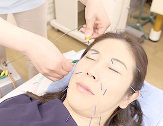電気美容鍼施術写真